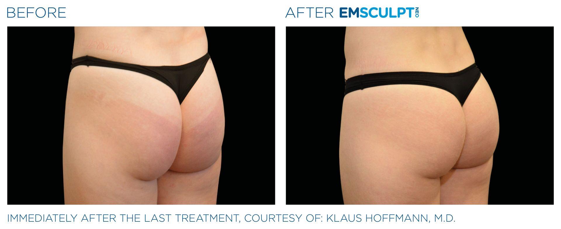 Emsculpt_Neo_PIC_Ba-card-female-buttock-045