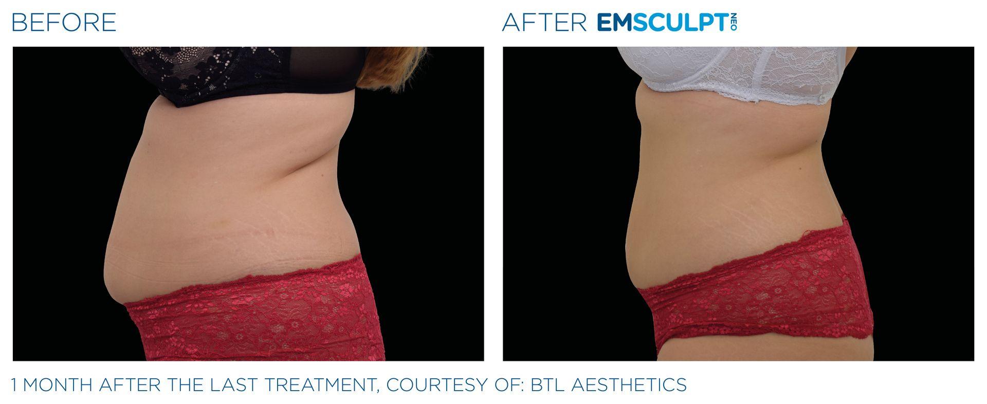Emsculpt_neo_PIC_Ba-card-female-abdomen-025