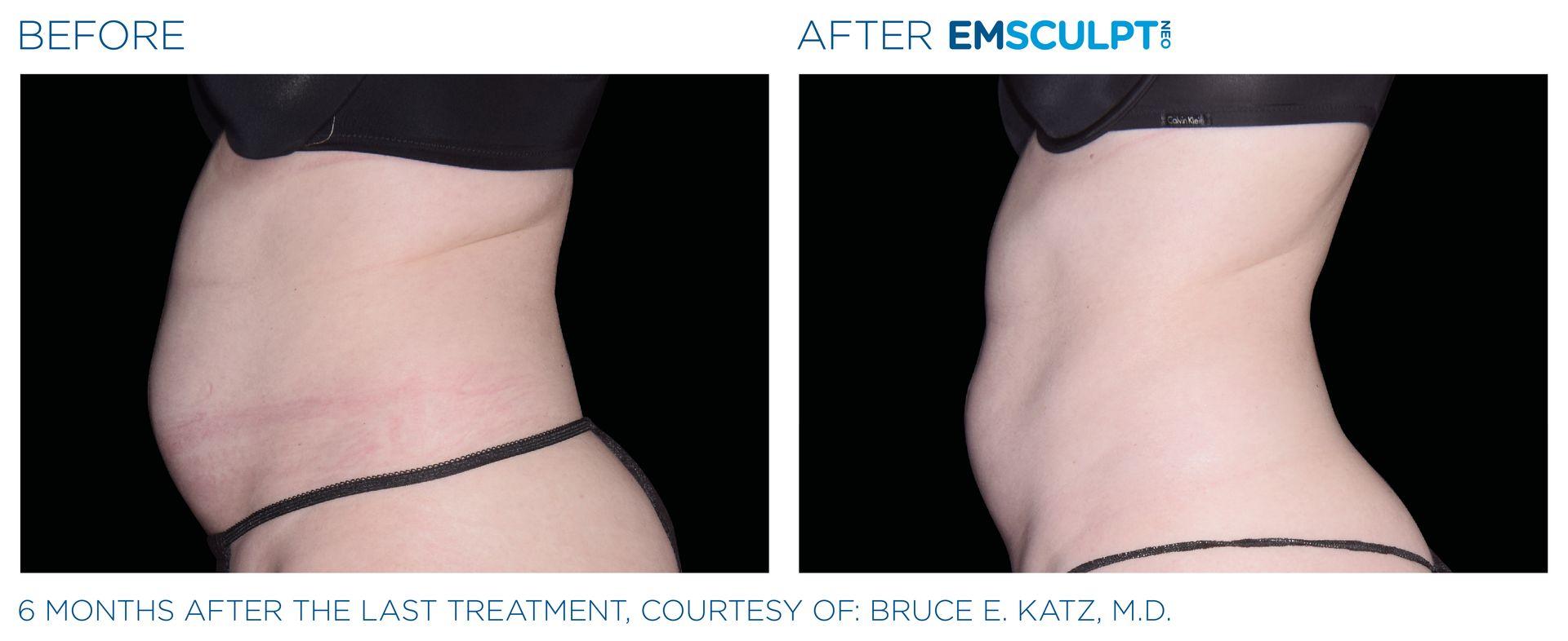 Emsculpt_neo_PIC_Ba-card-female-abdomen-038