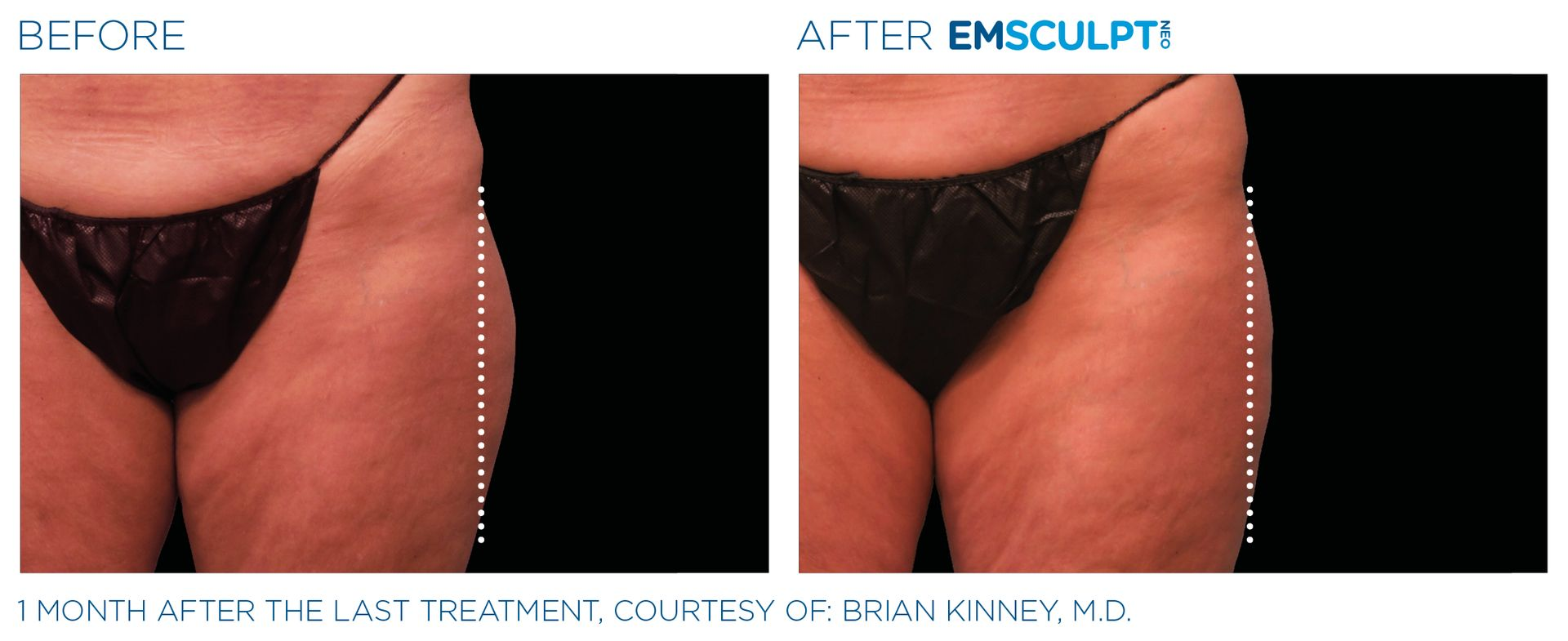 Emsculpt_neo_PIC_Ba-card-female-outer_thighs-049