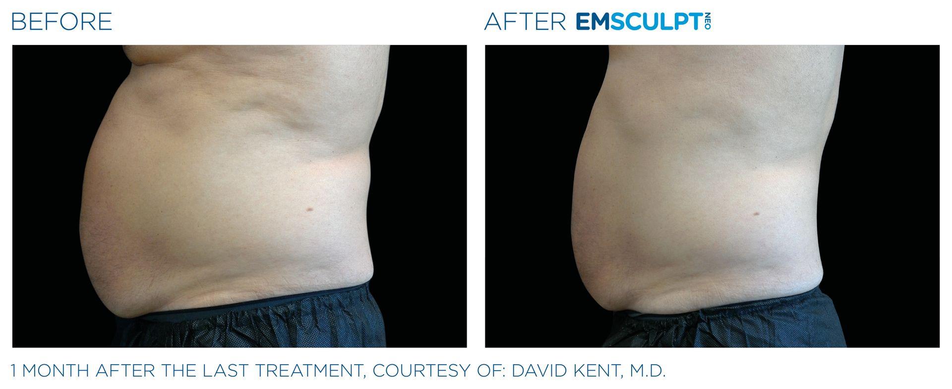 Emsculpt_neo_PIC_Ba-card-male-abdomen-002