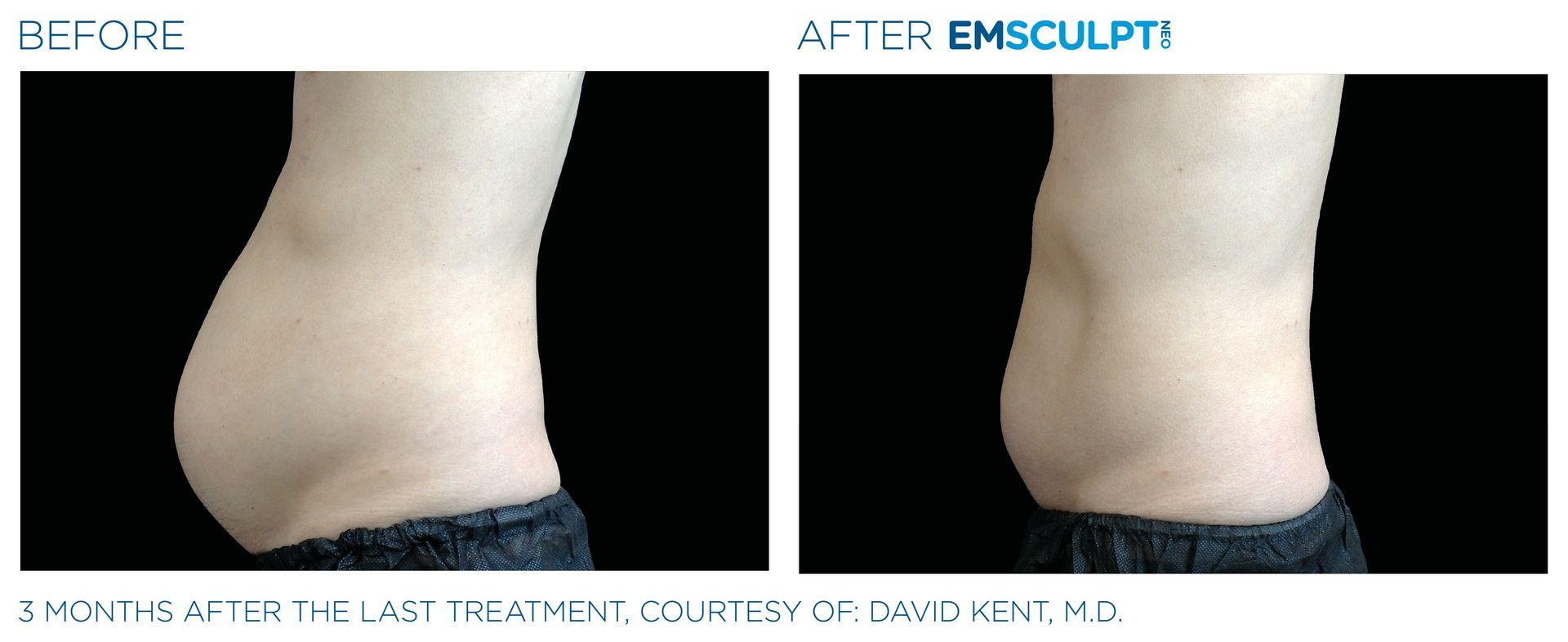 Emsculpt_neo_PIC_Ba-card-male-abdomen-022
